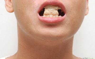 Përtyp 10 minuta çamçakëz, eleminon 100 milion baktere