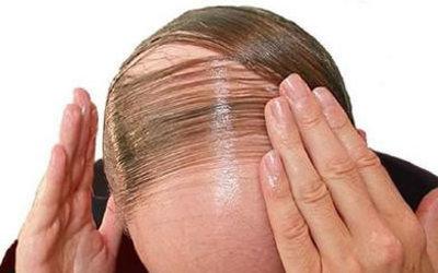 Qelizat embrionale, teknika e re për rritjen e flokëve të rënë