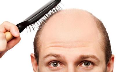 """""""Të parandalojmë rënien e flokëve me anë të shkuljes së tyre"""""""